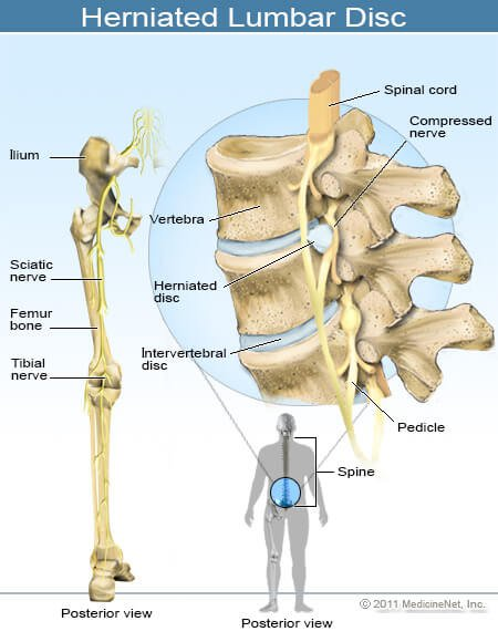 What Can I Do for Lower Back Pain