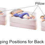 What Can I Do for Back Pain